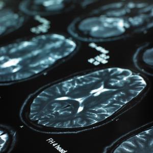 catatonia autism behavior imaging